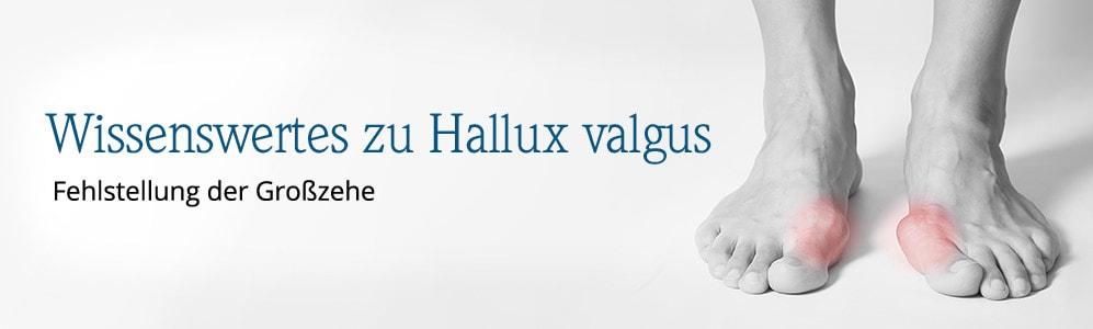 Wissenswertes zu Hallux valgus | Avena